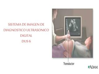 SISTEMA DE IMAGEN DE DIAGNOSTICO ULTRASONICO DIGITAL DUS 6