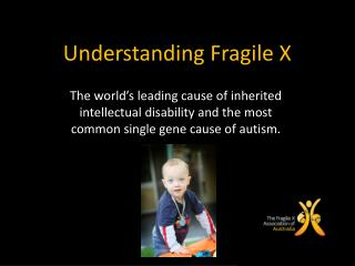 Understanding Fragile X