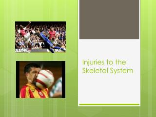 Injuries to the Skeletal System