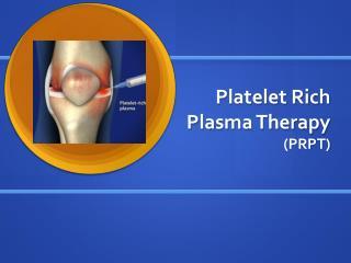 Platelet Rich  Plasma Therapy  (PRPT)