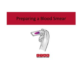 Preparing a Blood Smear