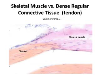 Skeletal Muscle vs. Dense Regular Connective Tissue  (tendon)