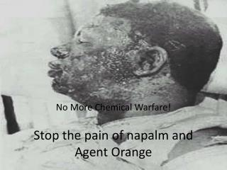 Stop the pain of napalm and Agent Orange