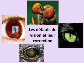 Les défauts de vision et leur correction