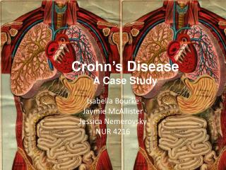 Crohn�s  Disease A Case Study