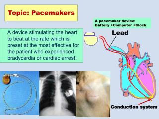 Topic: Pacemakers