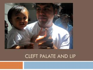 Cleft Palate and Lip