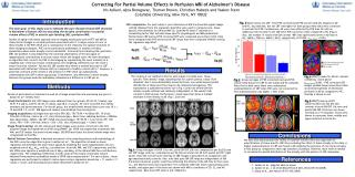 Correcting For Partial Volume Effects In Perfusion MRI of Alzheimer's Disease