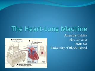The Heart-Lung Machine