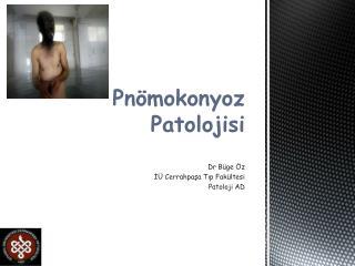 Pnömokonyoz Patolojisi