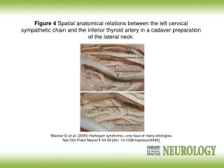 Wasner G  et al.  (2005) Harlequin syndrome—one face of many etiologies