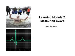 Learning Module 2: Measuring ECG's