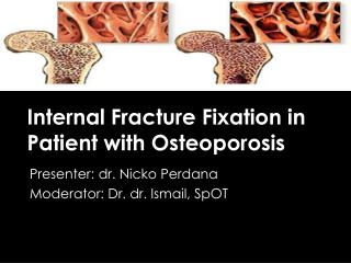 Internal Fracture Fixation in Patient with Osteoporosis