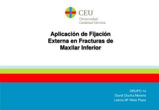 Aplicación de Fijación Externa en Fracturas de Maxilar Inferior