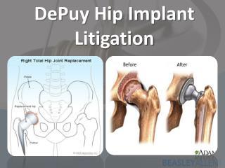 DePuy  Hip Implant Litigation