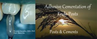 Adhesive Cementation of Endo Posts