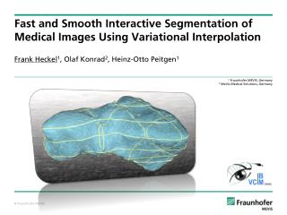 Fast and Smooth Interactive Segmentation of Medical Images Using Variational Interpolation