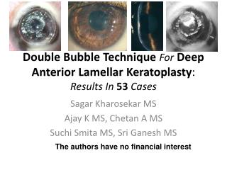Double Bubble Technique  For Deep Anterior Lamellar  Keratoplasty :  Results In  53  Cases