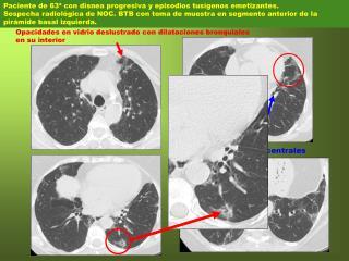 Paciente de 63ª con disnea progresiva y episodios tusígenos emetizantes.