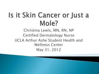 Is it Skin Cancer or Just a Mole?