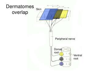 Dermatomes overlap