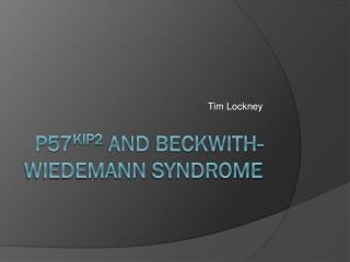 P57 Kip2 and Beckwith- Wiedemann  Syndrome