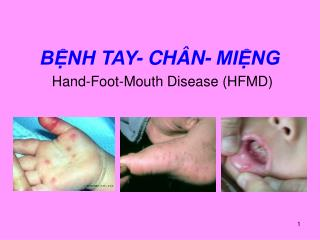 BỆNH TAY- CHÂN- MIỆNG Hand-Foot-Mouth Disease (HFMD)