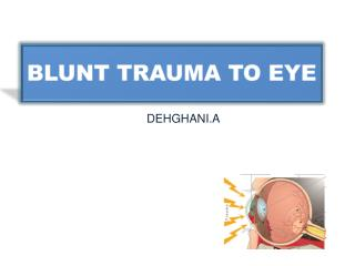 BLUNT TRAUMA TO EYE