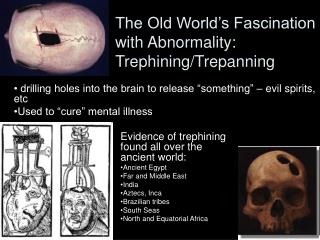 The Old World's Fascination with Abnormality: Trephining/Trepanning