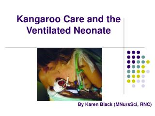 Kangaroo Care and the  Ventilated Neonate