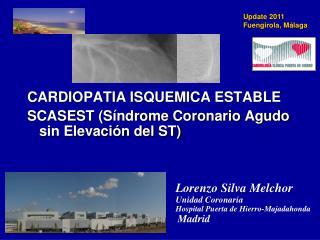 CARDIOPATIA ISQUEMICA ESTABLE SCASEST (Síndrome Coronario Agudo sin Elevación del ST)