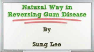 ppt 13031 Natural Way in Reversing Gum Disease