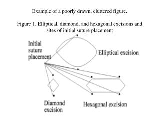 Example of a poorly drawn, cluttered figure.   Figure 1. Elliptical, diamond, and hexagonal excisions and sites of initi