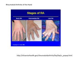 nihseniorhealth/rheumatoidarthritis/faq/faq1c_popup.html