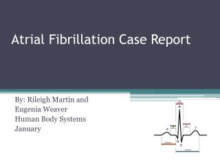 Atrial Fibrillation  Case Report
