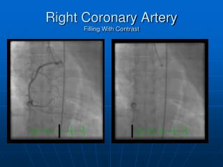 Right Coronary Artery  Filling With Contrast