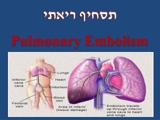 תסחיף  ריאתי Pulmonary Embolism