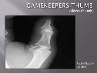 Gamekeepers Thumb