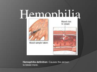 Hemophilia definition : Causes the person to bleed  more.