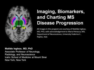 Imaging, Biomarkers, and Charting MS Disease Progression
