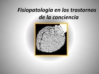 Fisiopatologia en los trastornos de la conciencia