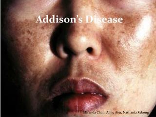 Addison�s Disease