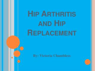 Hip Arthritis and Hip Replacement