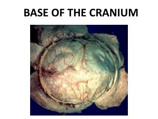 BASE OF THE CRANIUM
