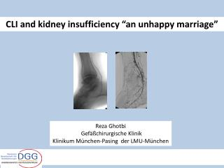 CLI and kidney insufficiency �an unhappy marriage�