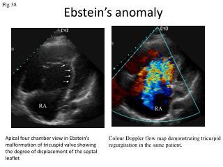 Ebstein ' s anomaly