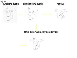 CLASSICAL GLENN