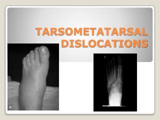 TARSOMETATARSAL DISLOCATIONS