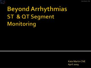 Beyond Arrhythmias ST  & QT Segment Monitoring