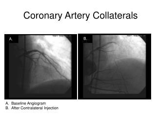 Coronary Artery Collaterals